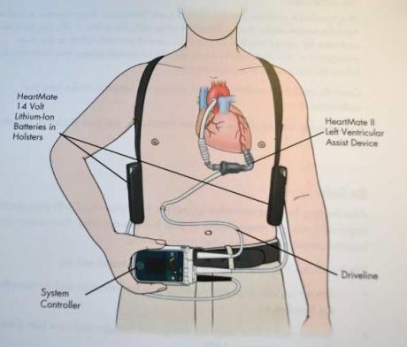 battery heart