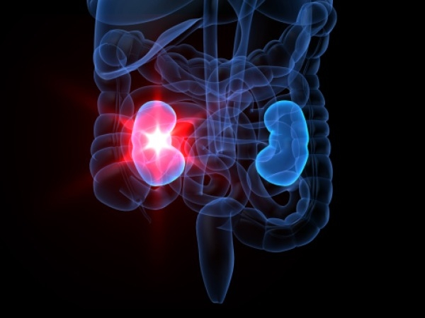Faltering Kidneys Can Hit Mental Functioning