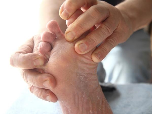 Diabetes Care: Diabetes Foot Self-Care