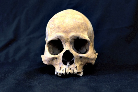 Dogs Offer Clues to Human Skull Development