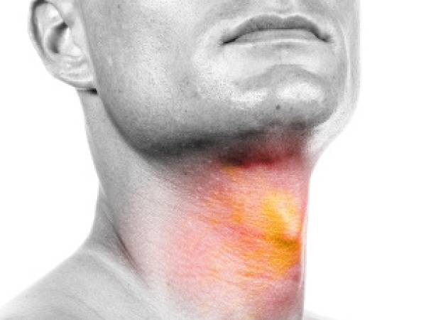 Risk Factors For Throat Cancer