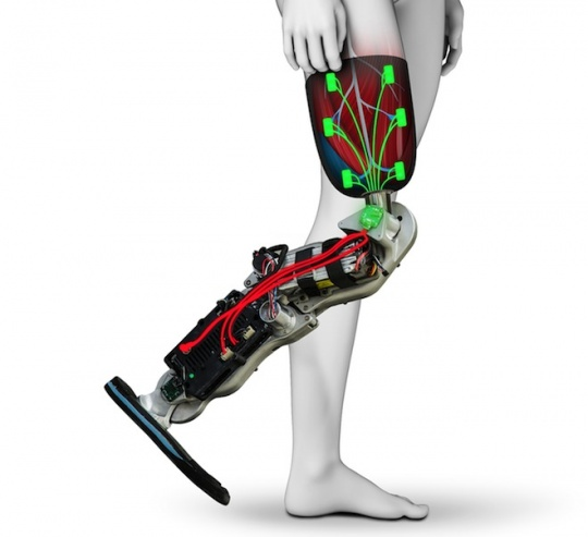Prosthetic Leg Made At Home