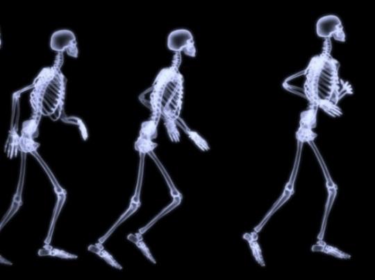 Binge Drinking Impairs Bone Healing