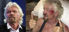 'Lucky To Be Alive' Says Virgin Group Founder Richard Branson After A Bike Crash Nearly Killed Him