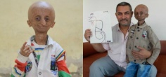 Nihal Bitla, Aamir Khan's Super Fan Who Suffered From Progeria, Passes Away At Age 15