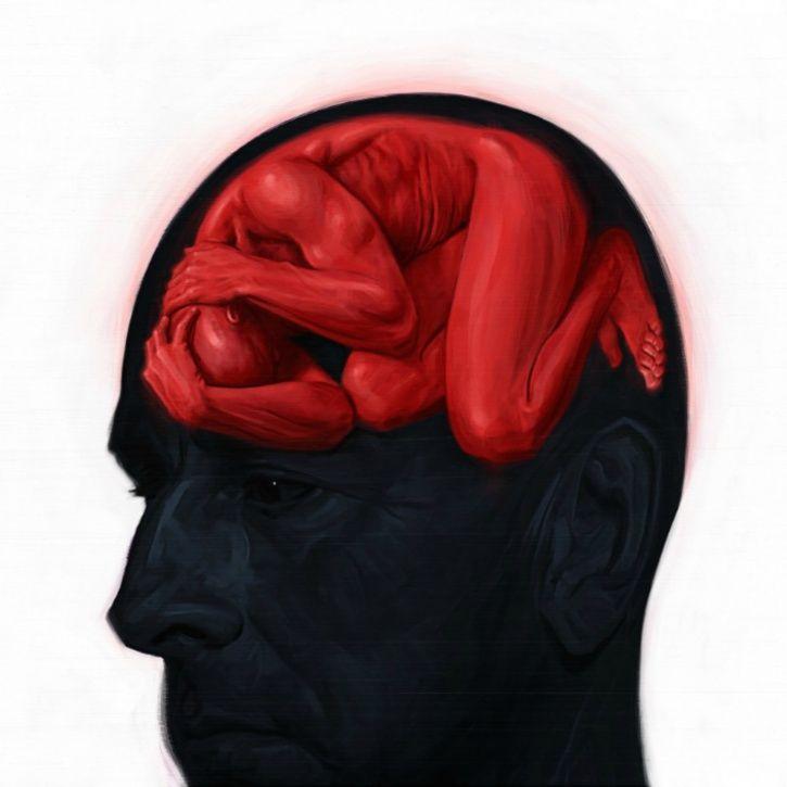 Brain Sick
