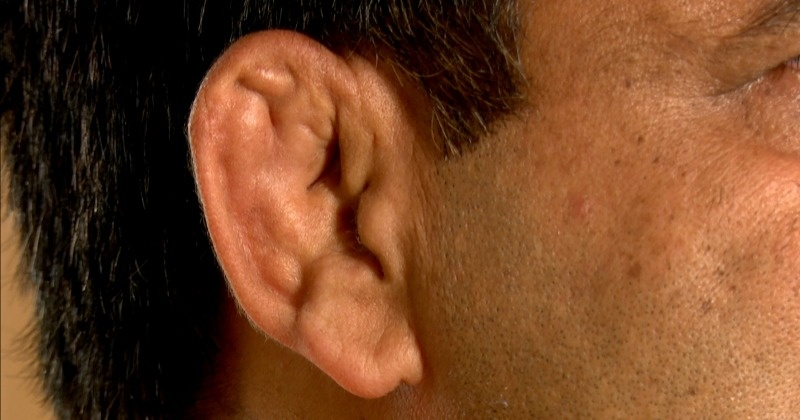 Pehalwaans Ears Like balls round