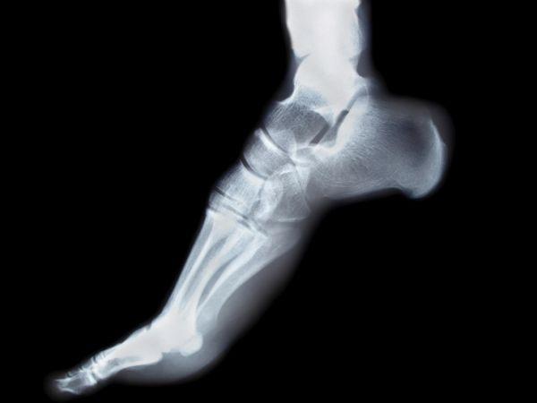 heel running