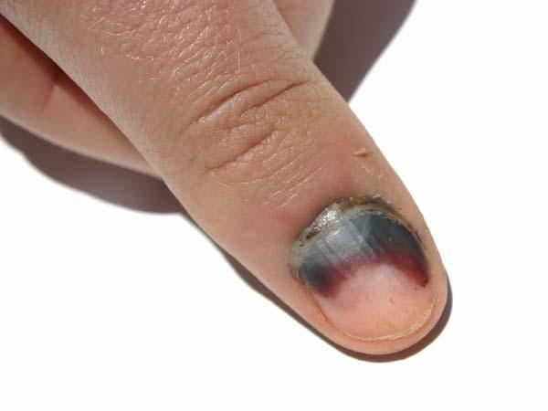 Горят пальцы под ногтями