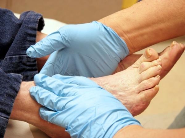 Diabetes Foot Problem
