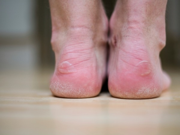 Seek treatment for calluses