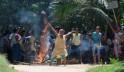 Assam Burns