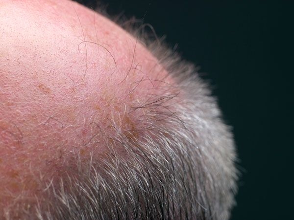 Hair balding is linked to old age