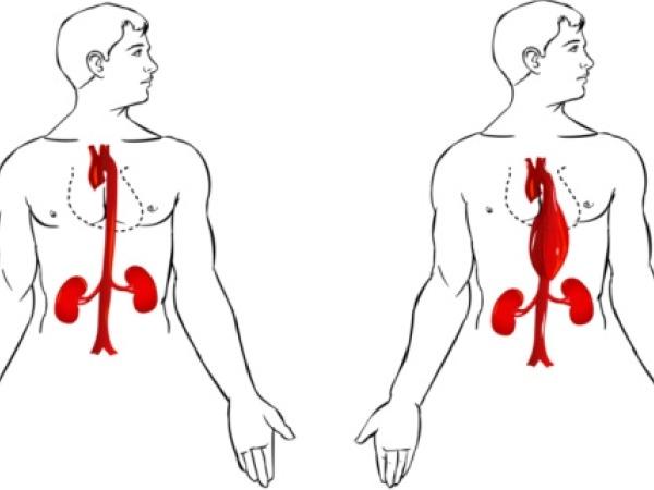Important Healthy Checkup # 9: Abdominal aortic aneurysm