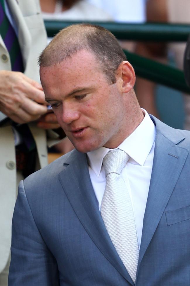 Bald Wayne Rooney