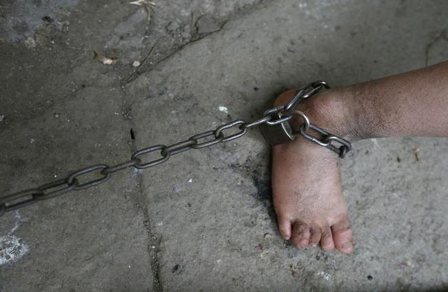 The chains around the ankle of eleven-year-old He Zili is seen in his home in Zhejiang province