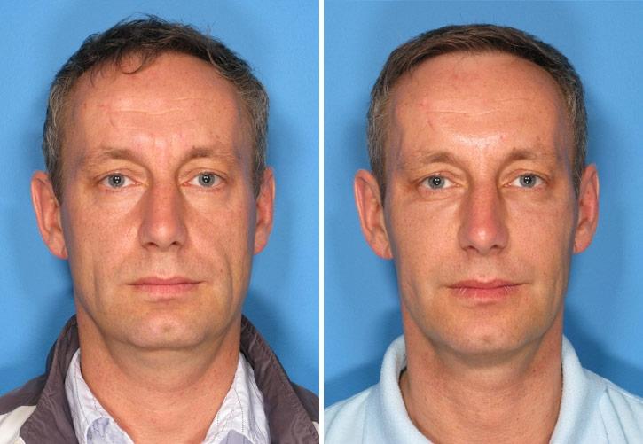 Men's Health: 16 Best Beauty Treatments for Men Plasma Rich Protien (PRP)