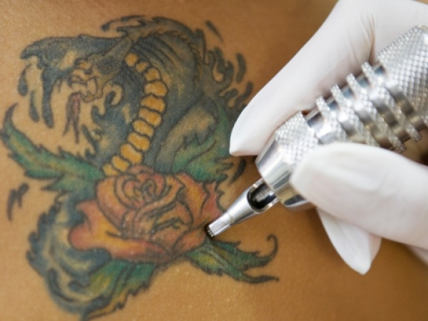 Tattoo Infections Linked To Manufacturers' Ink