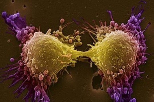 New Tech may Help Diagnose Cancer Early