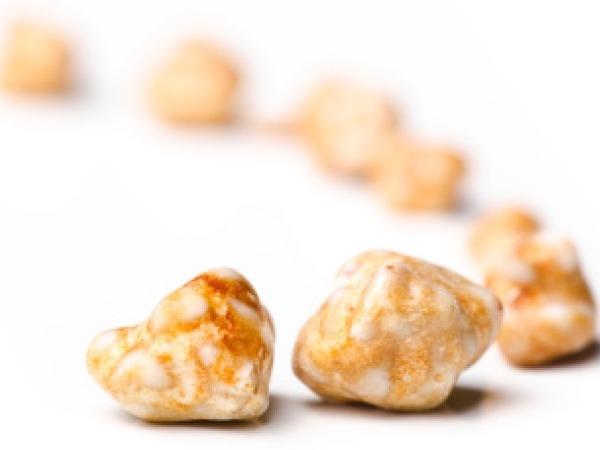 What Are Gallbladder Stones?