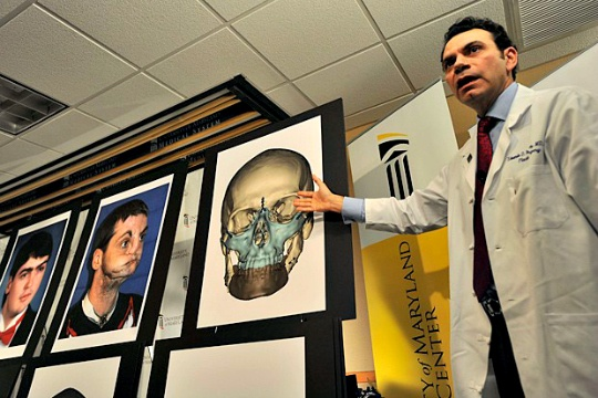 Human Head Transplant is Possible: Italian Neurosurgeon