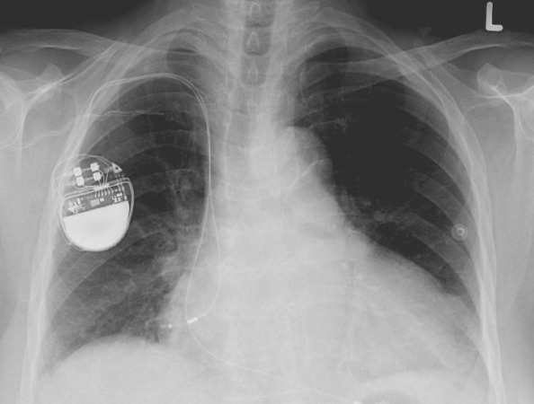 Pacemakers: Things You Should Know