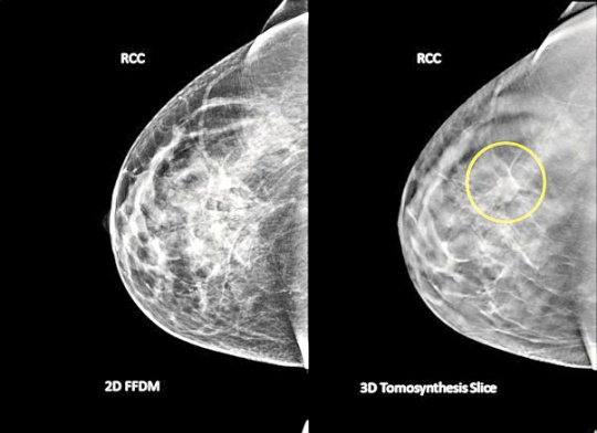 breast tomosynthesis a breast cancer screening tool