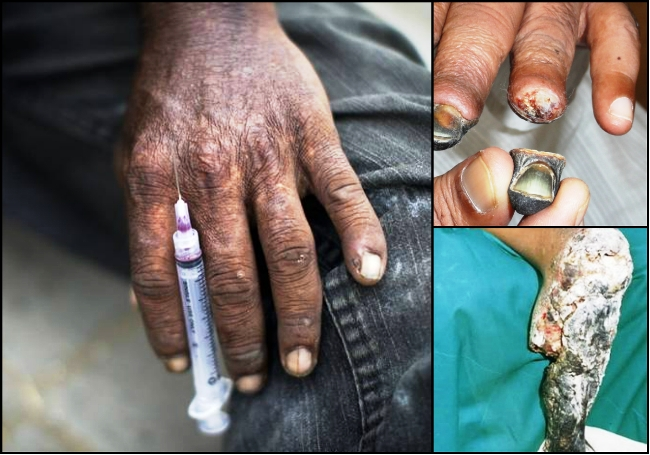yaba causes and effects A new drug trend is yaba dependence causes an increase in because of its components and health effects, yaba is classified as an illegal drug under the.