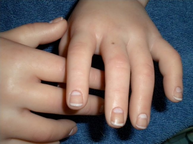 11 Mole On Fingers