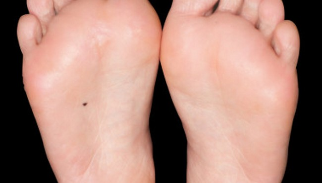 Bottom Meaning Of Foot On Freckle taught from unique