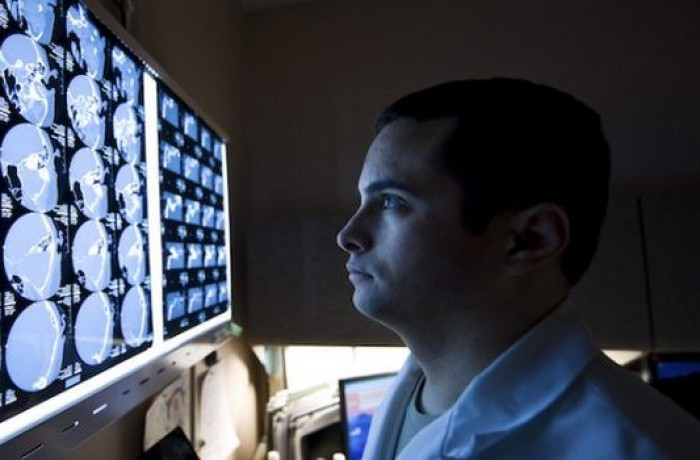 The scientists took CT scans of 48 patients suffering from various diseases using a computer-based analysis that was able to predict the patients that would die within 5 years with 69 percent accuracy. The rate is comparable to manual predictions made by doctors