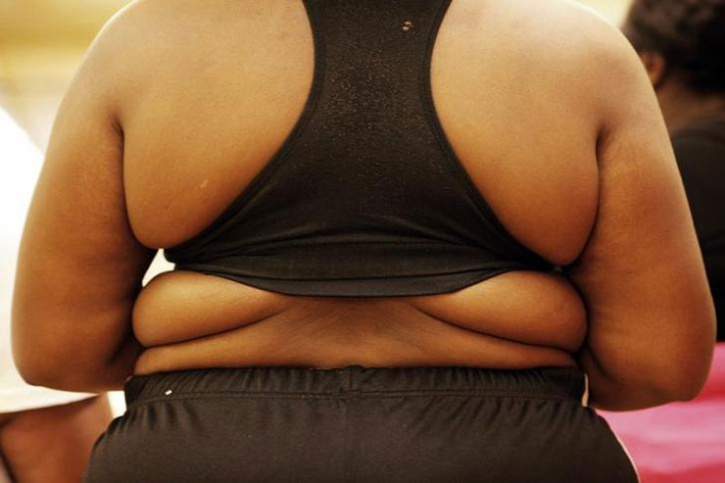 obesity related illness