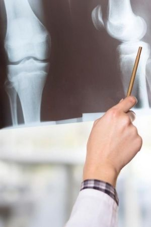 Do You Know That Probiotics Can Also Help Increase Bone Density Cut The Risk Of Osteoporosis