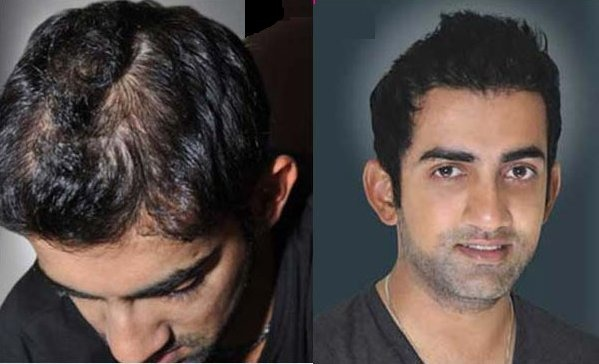 Male celebrities who have undergone plastic surgery and hair previous pmusecretfo Images