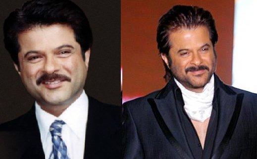 Ranbir Kapoor Before Hair Transplant Male celebrities...