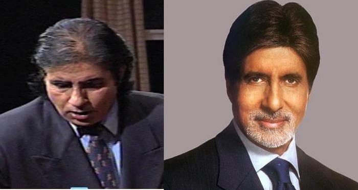 Celebrity Hair Transplant in India - Sharry Mann, Shahbaaz ...