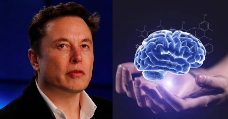 Elon Musk Wants To Eliminate Brain Diseases With His Neuralink Tech, But It's Going To Be Hard