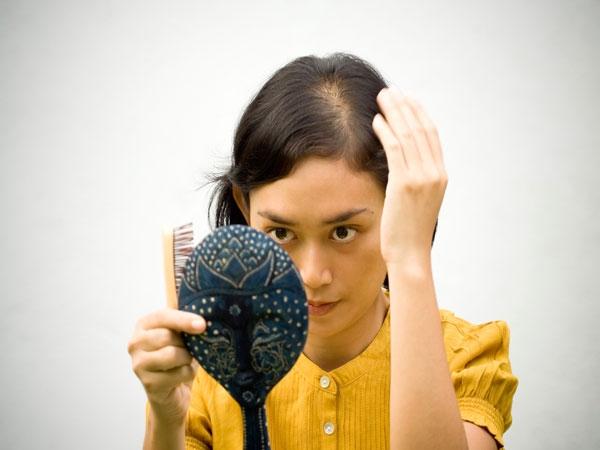 Hair loss triggered by Menopause
