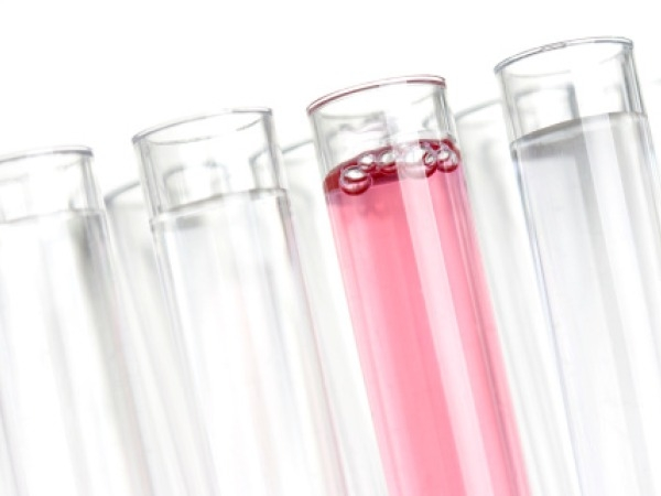 Antinuclear antibody (ANA) test