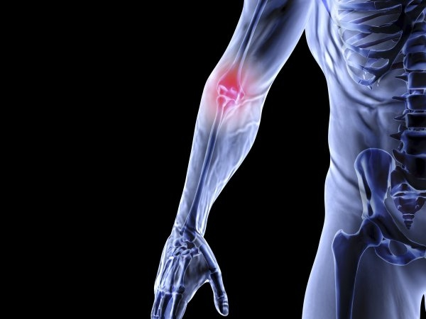 Arthritis is the commonest cause of knee problems