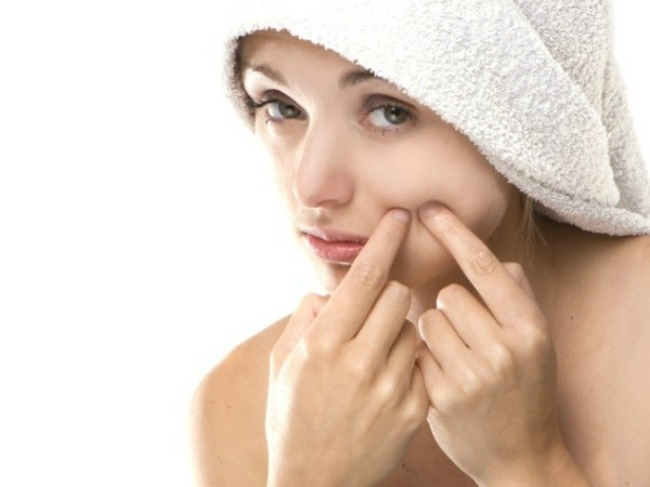 aloe is used to alleviate pimples