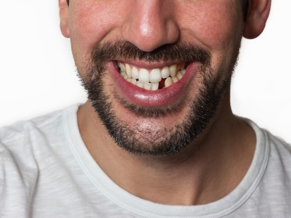 Dental care: Perfect Smile Replace missing teeth