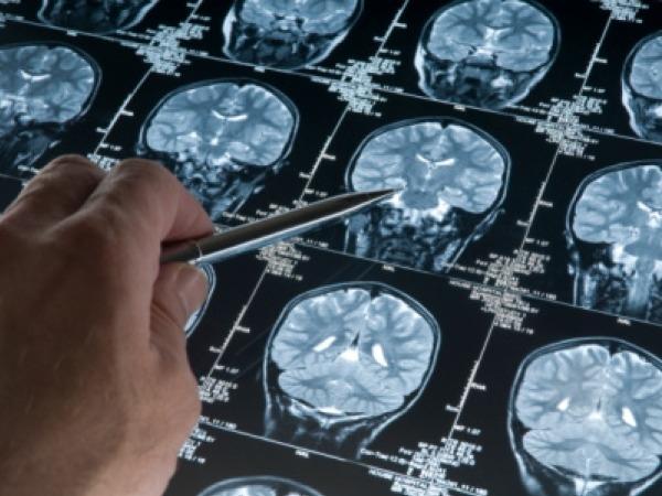 Alzheimer's: What is Alzheimer