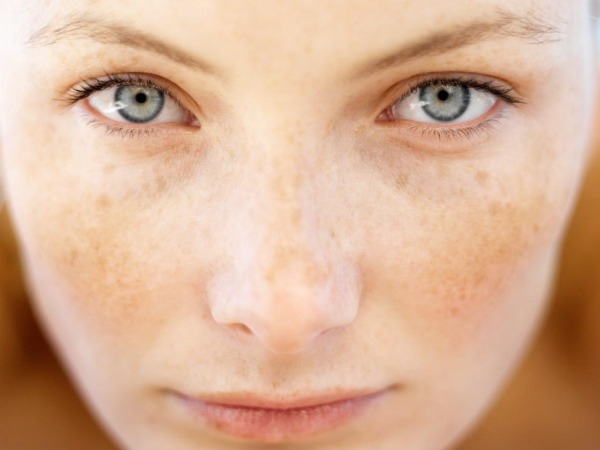 Skin Care: 10 Unusual Skin Problems You Ignore Pigmentary demarcation lines (PDL)
