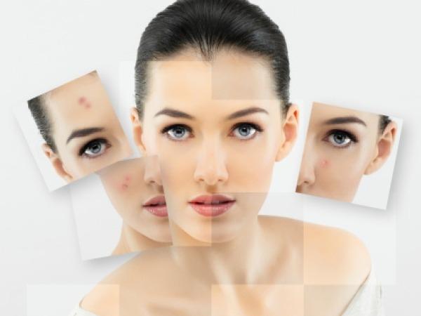 Home Remedy to Treat Acne Scars # 7: Lemon remedy