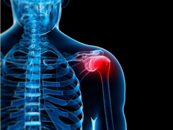 Recurrent instability of the Shoulder