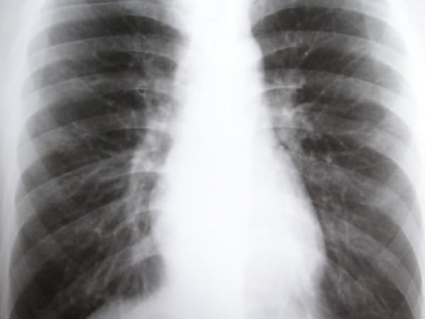 Tuberculosis Taboos