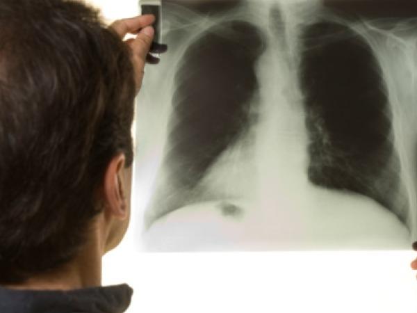 How is Tuberculosis Detected?