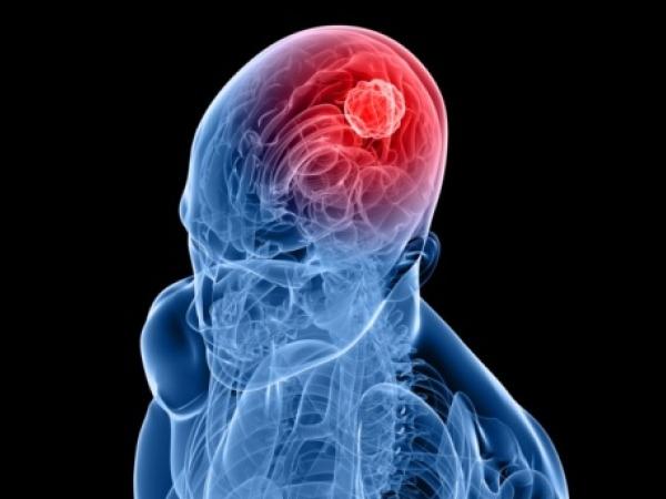 Headache Type # 9: Brain tumour