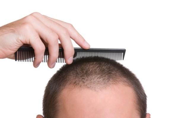 Clogged pores causes hair loss